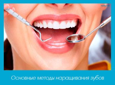 методы наращивания зубов